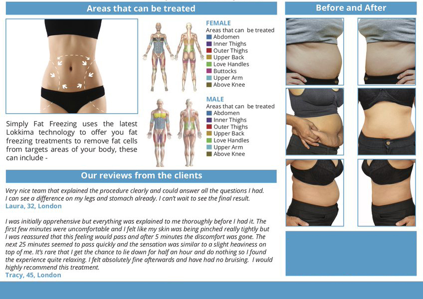 Fat Freeze | Cryoliposis | Kent | The Beauty Clinic
