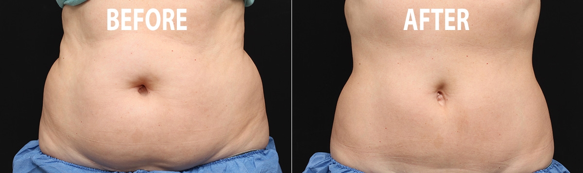 before after fat freezing teatment